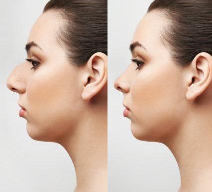 Correttore nasale in silicone
